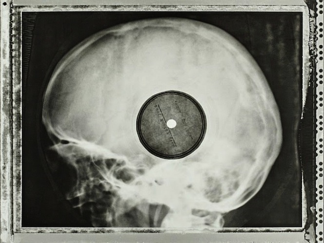 incredible-images-of-soviet-era-bootleg-records-pressed-on-discarded-x-rays