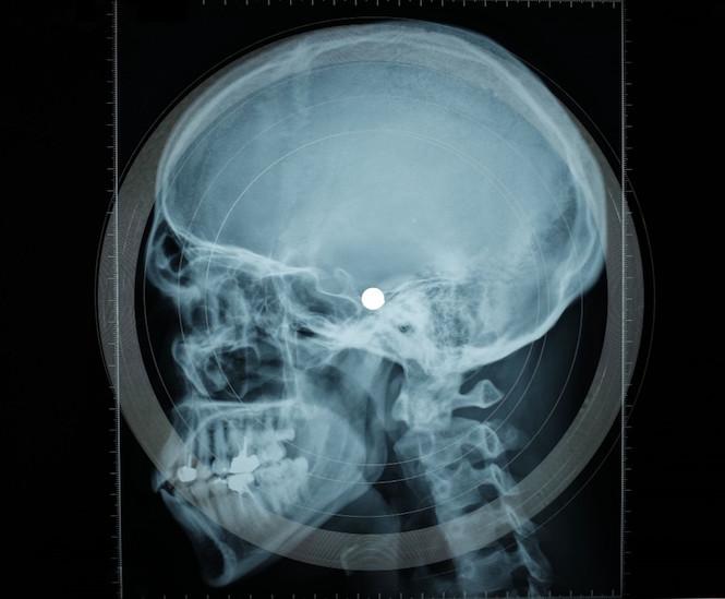 torture-victim-testimonies-x-rays